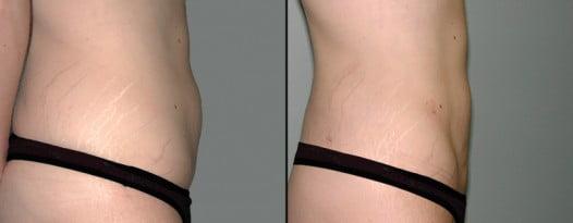 McLean, VA – Liposuction Patient 1