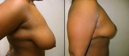 McLean, VA – Breast Lift Patient 1