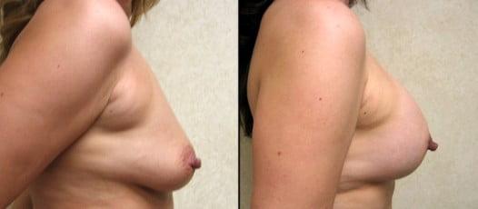 McLean, VA – Breast Lift with Implants Patient 1
